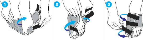Bunion Correction System & Neo G Bunion Correction System