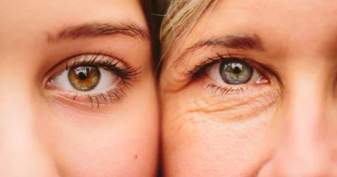 Eyelid Cream