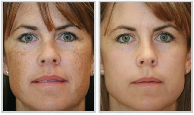 Treatment of Melasma on Face
