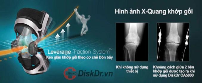 Đai Kéo Giãn Khớp Gối Disk Dr SP-1000 (hỗ trợ vận động)