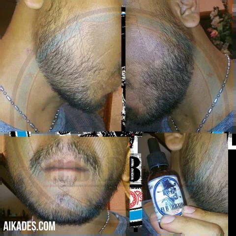 resultados-minoxidil-barba-1