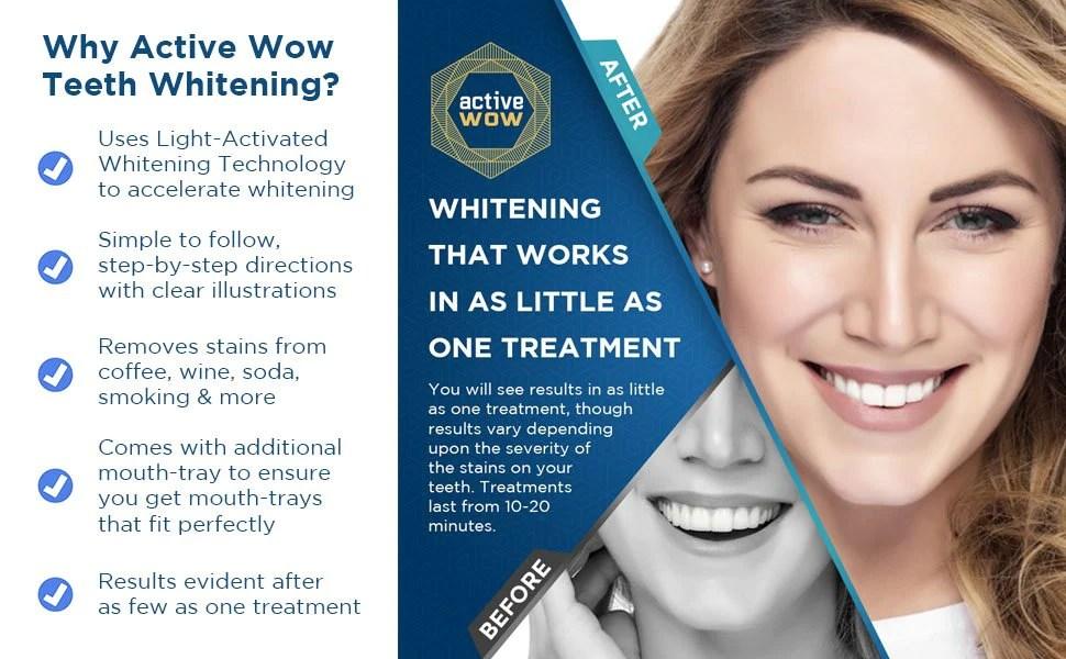 Teeth Whitening Blue Light