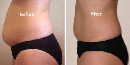 Ultrasonic Cavitat Rf Fat & Cellulite Remover