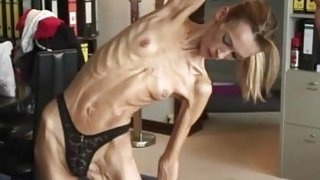 Image: Anorexic blonde girl Inna strips and shows her flexible body