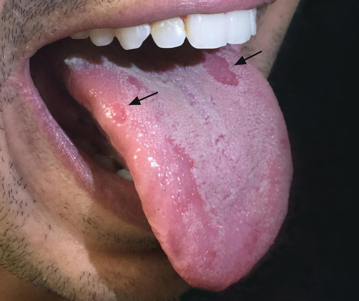 Syphilis Symptoms Lips