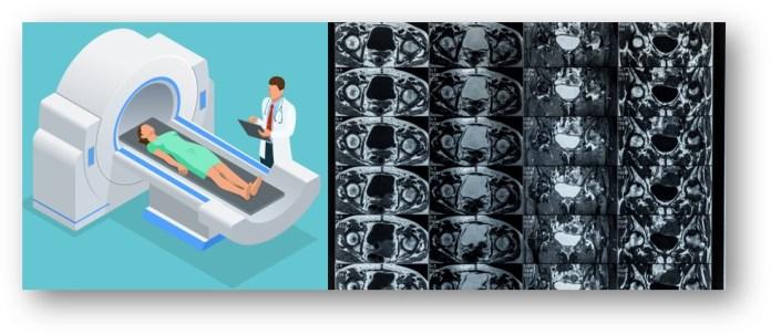 MRI 영상2.jpg