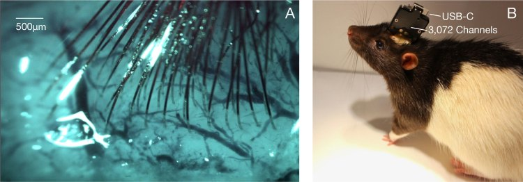 A la izquierda, los electrodos en forma de hilo implantados en el cerebro de la rata. A la derecha, una rata con el chip N1 conectado a un módulo USB.