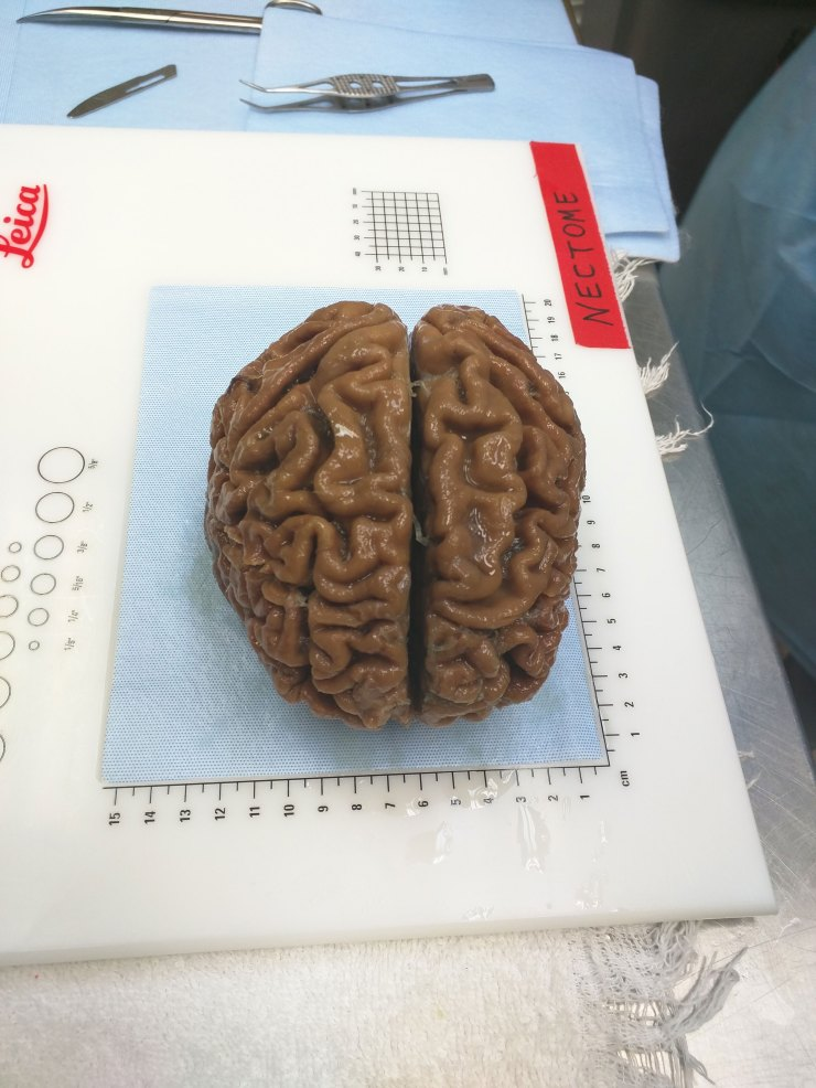 Image result for nectome brain