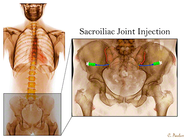 Dysfunction Joint Si Exercises