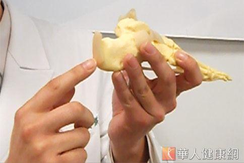台北慈濟醫院骨科運用「異體肌腱移植」方式,讓患者免於斷腳筋。(攝影/張世傑)