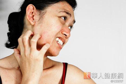 帶狀疱疹發作時的症狀主要是神經痛和出現皮疹。