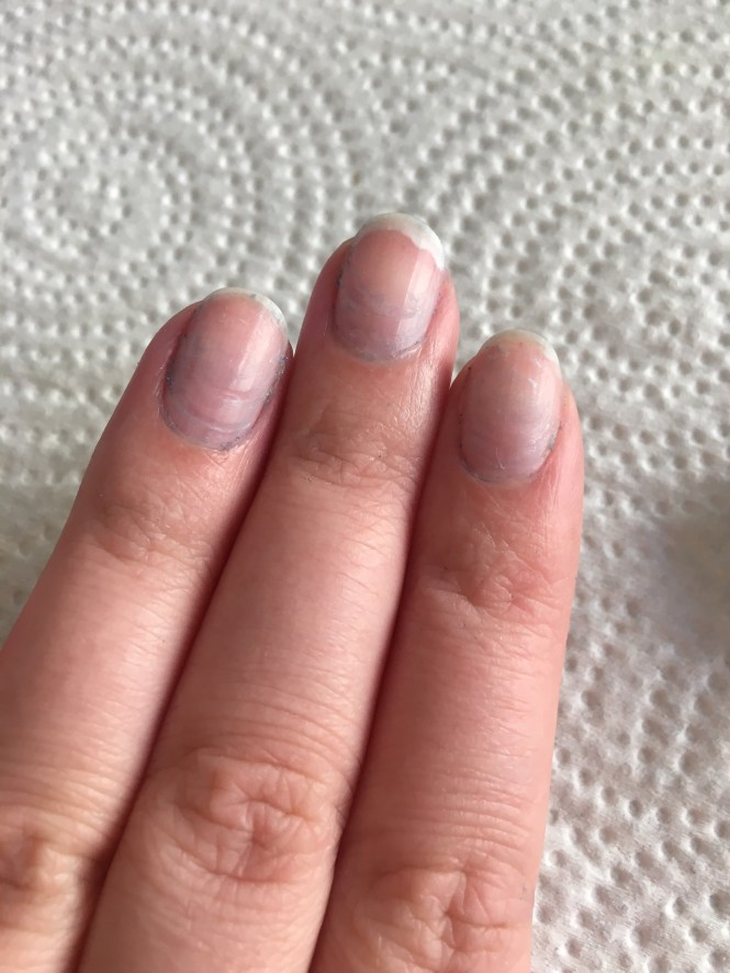 Get Regular Fills A Friend Of Mine Who Shall Remain Nameless Once Went Month Without Fill And Ended Up Getting Pretty Nasty Infection When Nail
