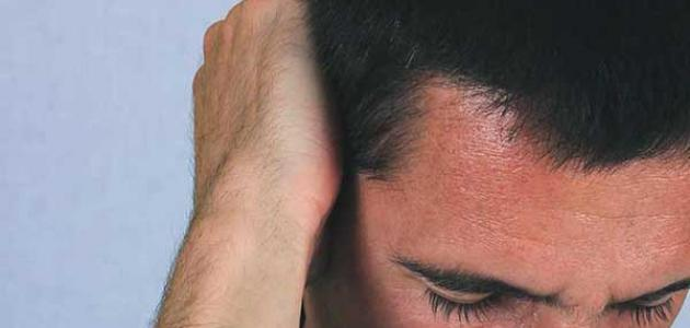 أسباب صداع خلف الرأس موسوعة وزي وزي
