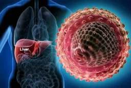 Image result for Viral hepatitis