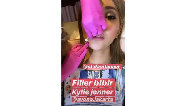 6 Potret Terbaru Lucinta Luna Setelah Filler Bibir, Sebut Mirip Kylie Jenner