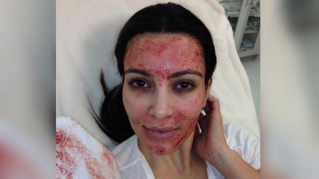 Kim Kardashian sedang melakukan facial darah (Kim Kardashian).