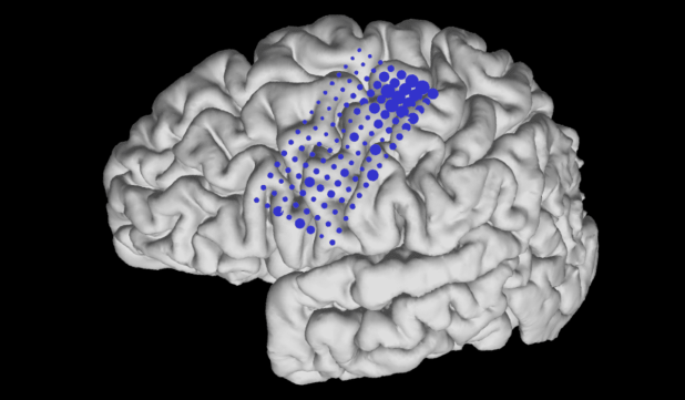 This brain rendering reflects the load of the electrodes that remove the BCI control.