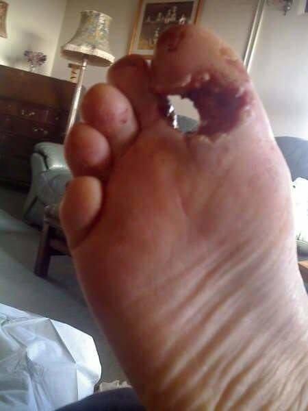 steel toe accident 2