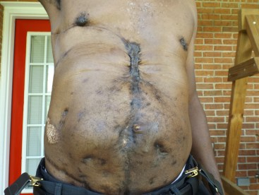 Capt. Robert Johnson's scars more than 7 years after the assassination attempt. He says the police department and the state helped pay for more than $1 million in medical expenses.