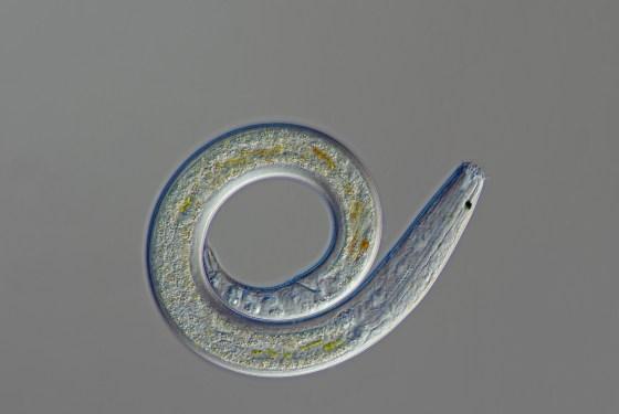 A nematode worm like the one Vishnivetskaya discovered and thawed. F.Neidl.