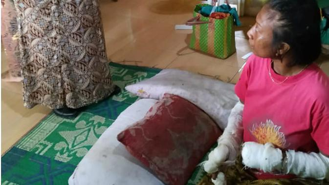 Wiji Fitriani (28) warga Dusun Tambak Desa Ngadi Kecamatan Mojo Kabupaten Kediri Jawa Timur, pasien sakit jiwa yang sempat viral di medsos karena menggigit jari jemarinya hingga hampir putus. (Liputan6.com/Dian Kurniawan)