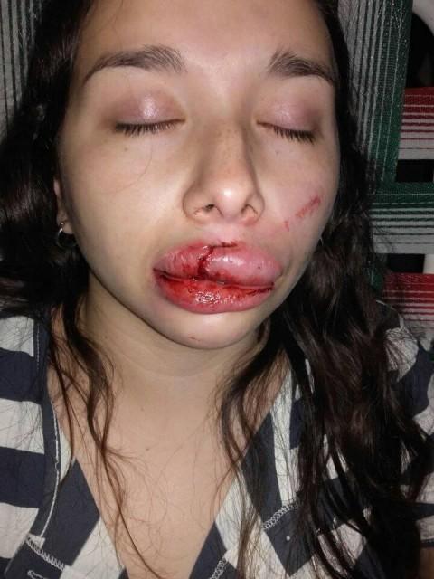 Joven se resiste a violación grupal y la desfiguran a golpes