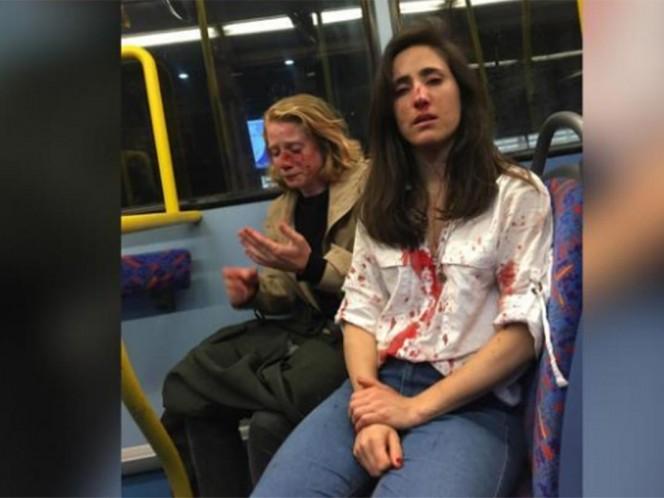 Melania Geymonat publicó en su cuenta de Facebook una fotografía de ella y su novia Chris ambas llenas de sangre. Foto tomada de Facebook