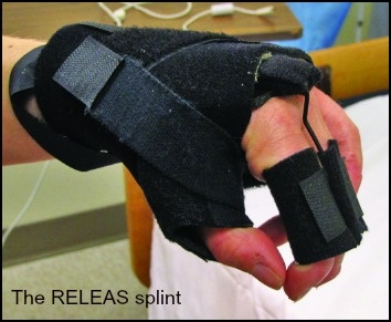 the_releas_splint_354_with_caption.jpg