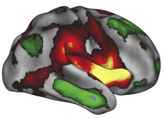 The Imagination Network of The Brain - Creative Cognition