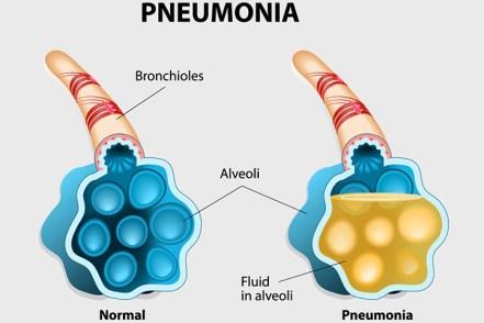 Kurangi Resiko Terkena Pneumonia- Global Estetik Dental Care
