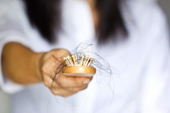 La alopecia tiene varios síntomas, por lo cual hay que saber identificarlos, uno de ellos es el dolor en cuello cabelludo.
