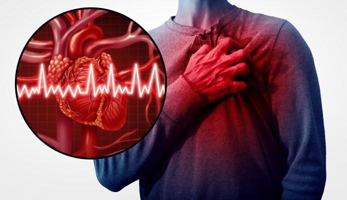 Aumenta el riesgo de padecer enfermedades coronarias