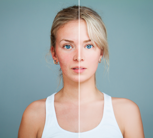 Por qué se enrojece la piel mucho