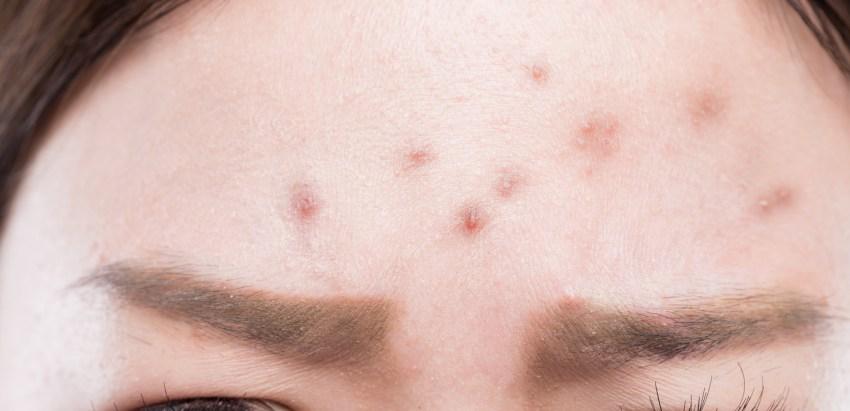 nodulos-acne-salud180