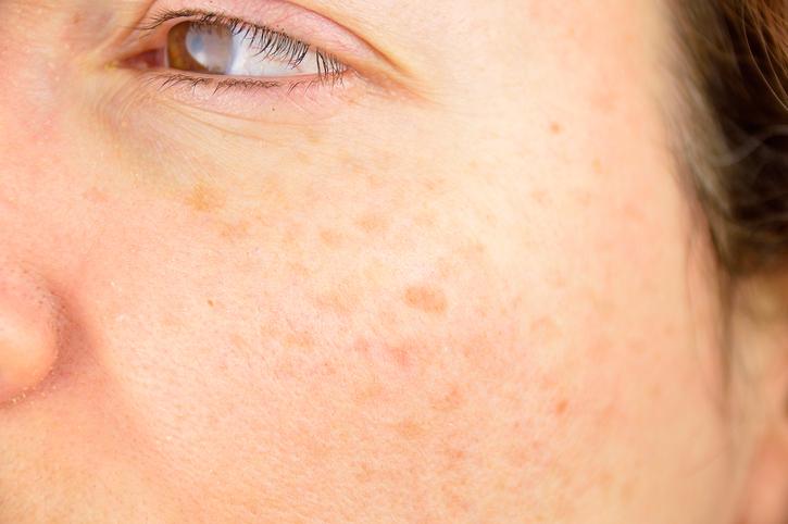 Vitaminas para eliminar manchas en la piel