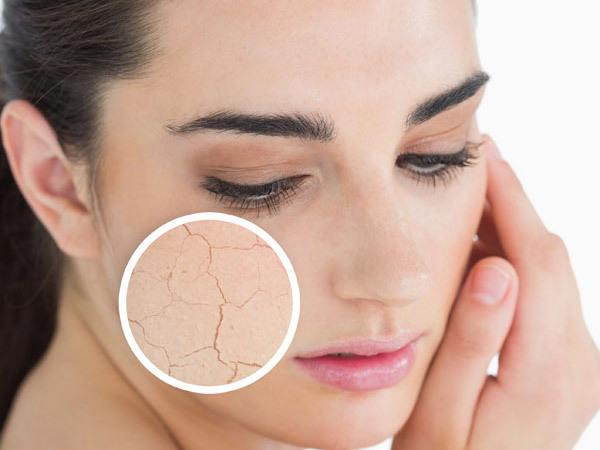 10 Beste Tips Voor Een Droge Huid | Behandeling voor Droge Huidverzorging