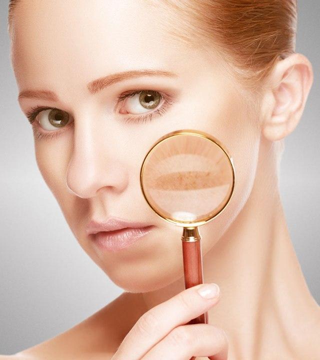Kết quả hình ảnh cho pigment spots on face
