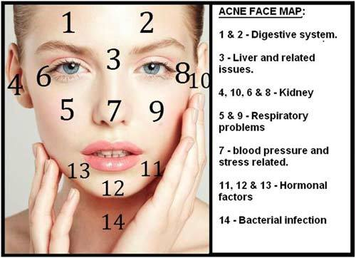 Image result for hormonal acne face map