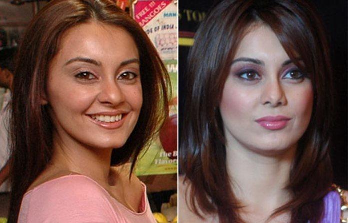 Minissha Lamba Before and After Plastic Suregery