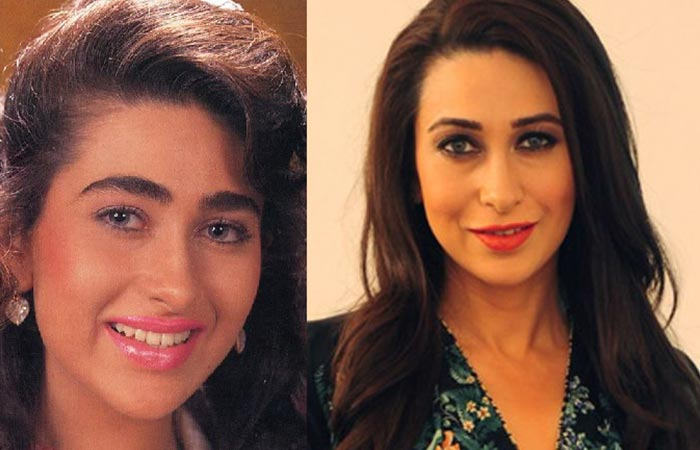 Karisma Kapoor Before and After Plastic Suregery