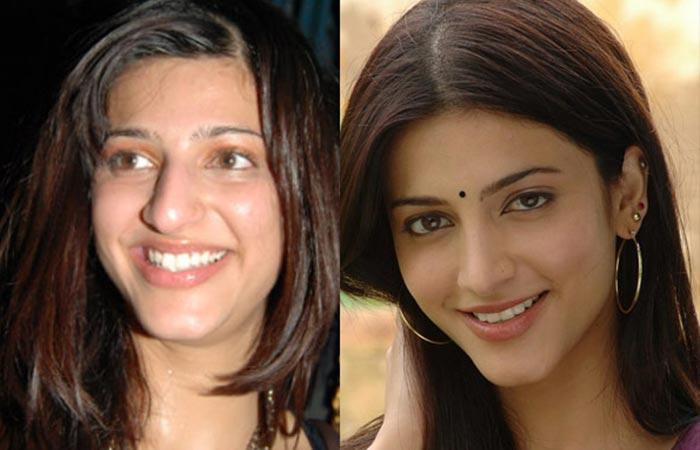 Shruti Hassan Responds On Plastic Surgery And Self Love