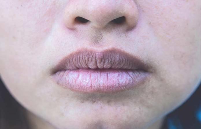 4. Pale Lips