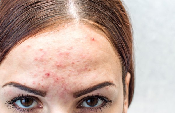 What Are The Causes Of Hormonal Acne