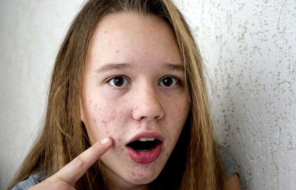 What Is Hormonal Acne
