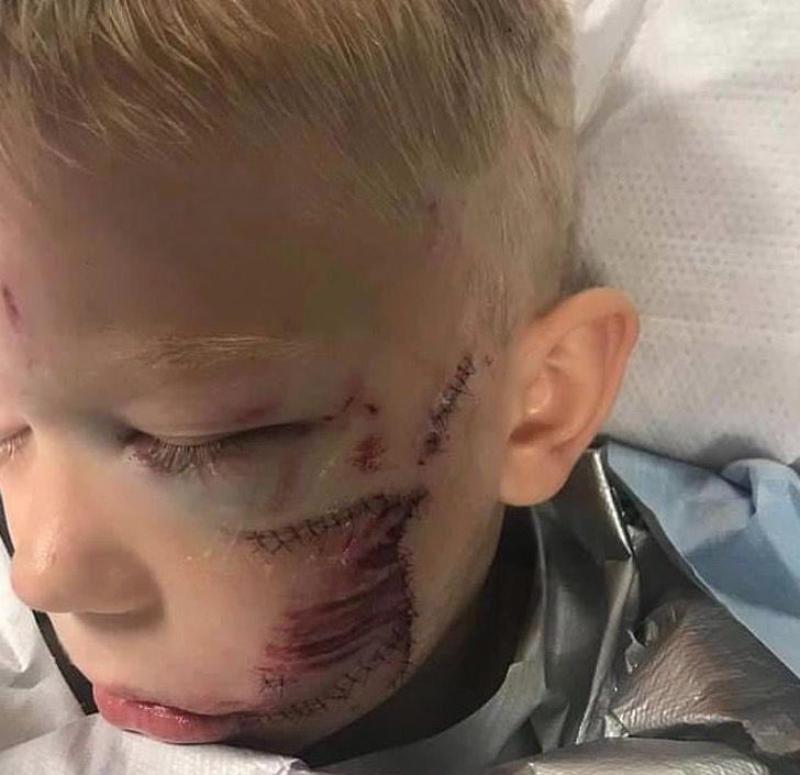 Captura de Pantalla 2021 01 11 a las 15.16.23 - Niño que salvó a su hermana del ataque de un perro mejora sus cicatrices. Su rostro vuelve a brillar