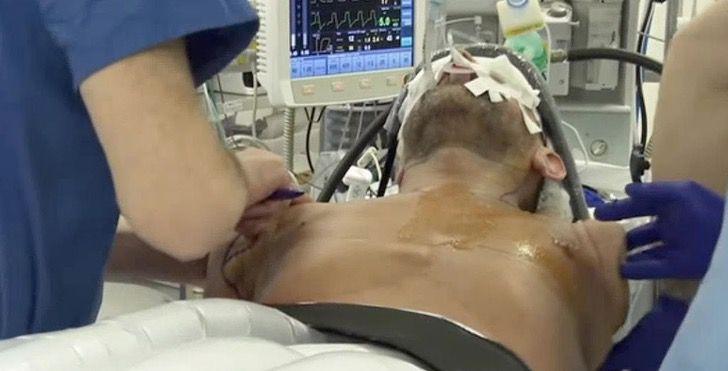 Captura de Pantalla 2021 01 28 a las 15.54.38 - Es el primero en recibir doble trasplante de brazos y sueña con moverlos. Cada vez está más cerca