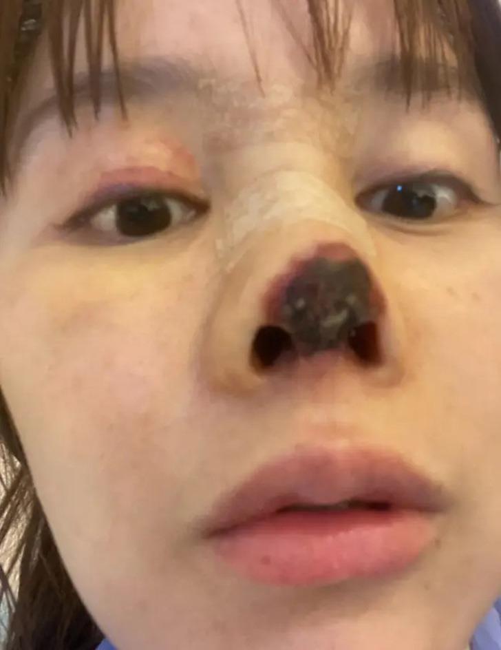 actriz china nariz cirugia0000 - Actriz sufrió una infección en su nariz luego de una cirugía que salió mal. La punta se tornó negra