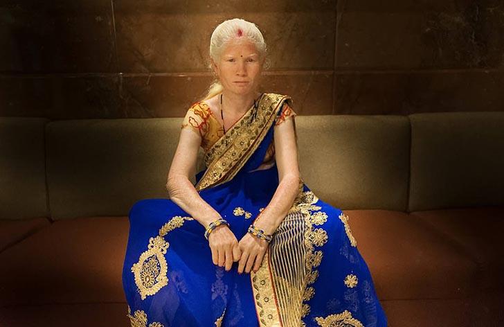 """silviaalessi skinproject albinismo007 - 14 fotografías de """"Skin Project"""": Una serie de retratos de albinos y mujeres quemadas con ácido"""