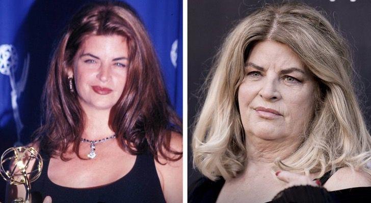 dr7 - 16 famosos que cambiaron tanto que se volvieron otras personas. Amanda Bynes luce irreconocible