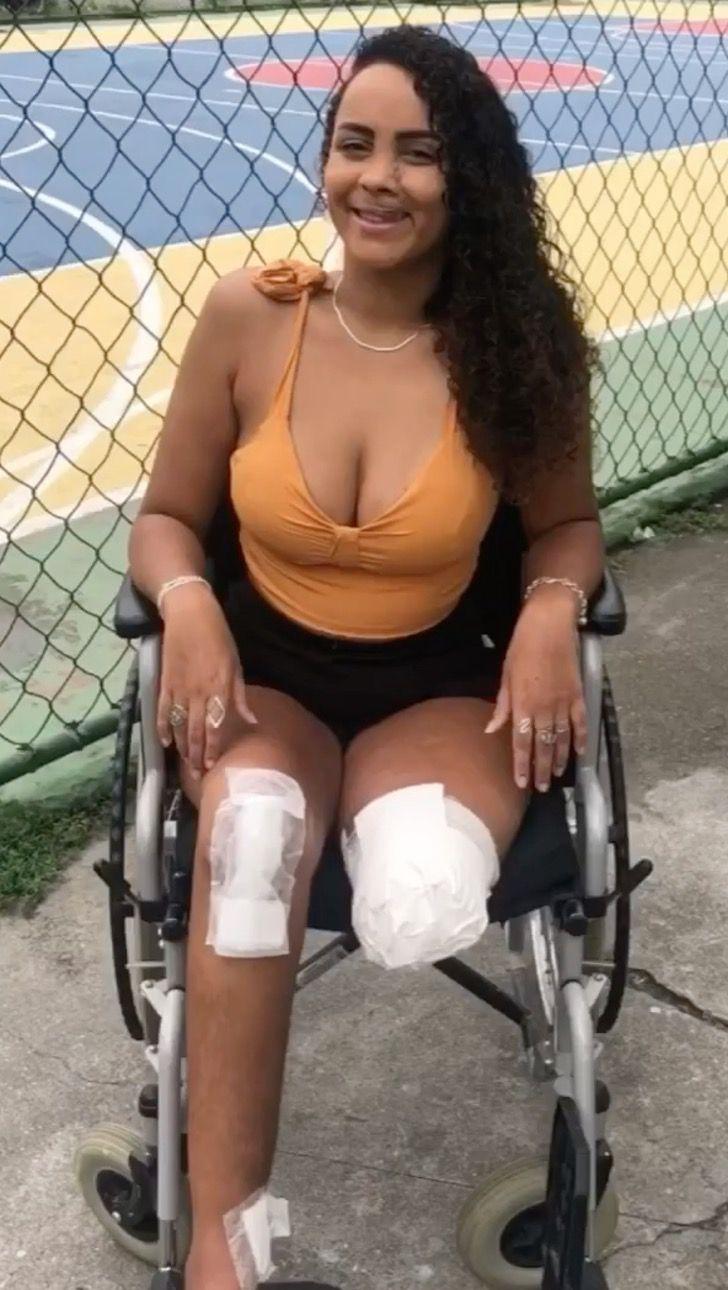 Captura de Pantalla 2021 01 26 a las 17.17.35 - Joven perdió su pierna en un accidente de moto y recibirá una prótesis. Se adapta a su nueva vida